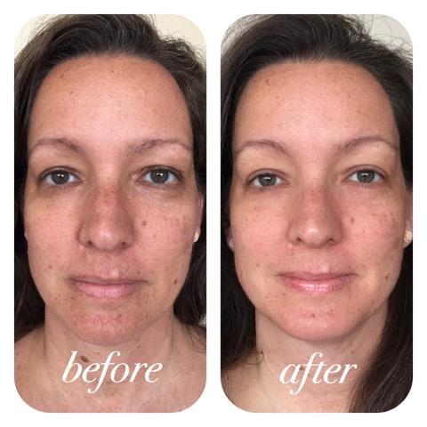 Mei Zen Facial Rejuvenation 187 White Crane Acupuncture And